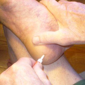 Applying super glue to heel crack