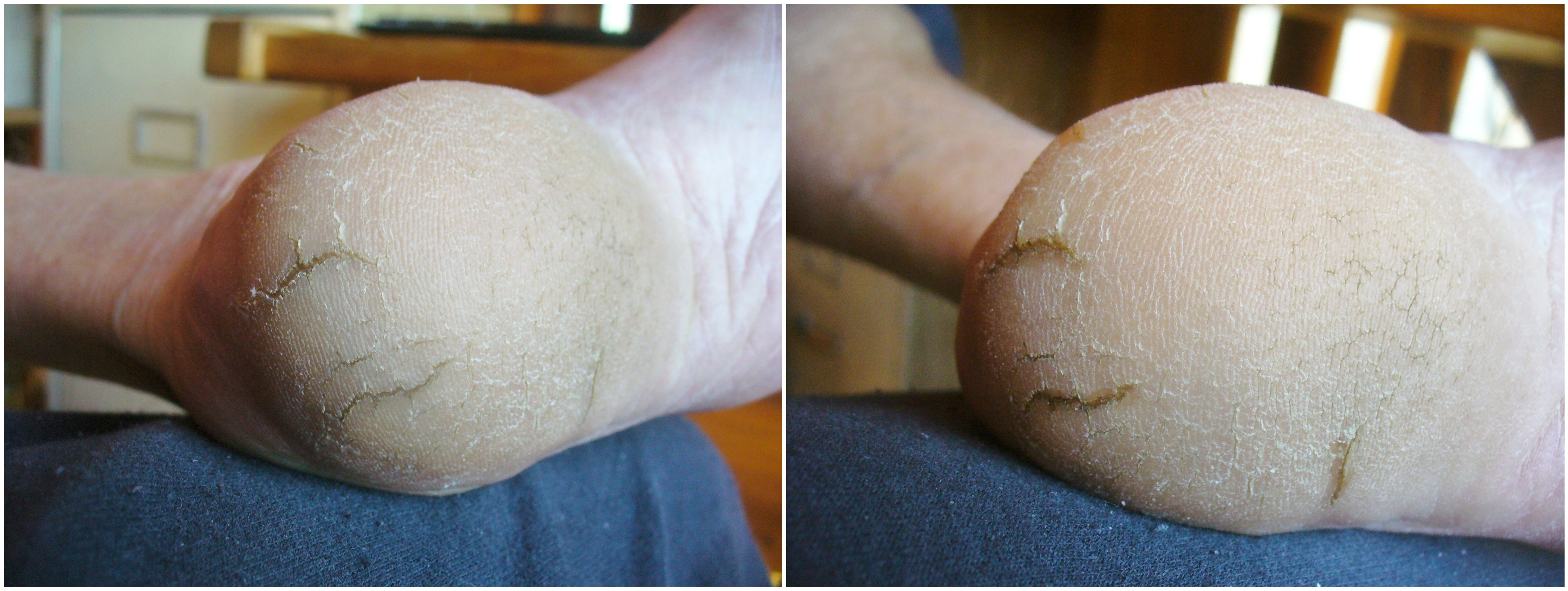 Minor heel cracks before and after gluing