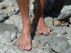 Healthy bare feet that never wear shoes. Living barefoot will prevent the vast majority of foot ailments and diseases.